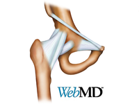 WebMD Illustration
